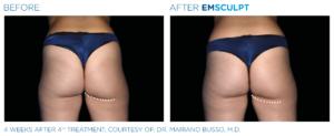 Emsculpt Buttocks 6