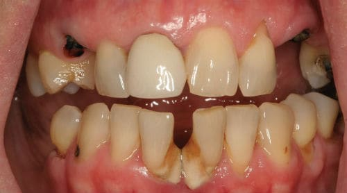 Photo of patient's mouth before EnvisionTM program.
