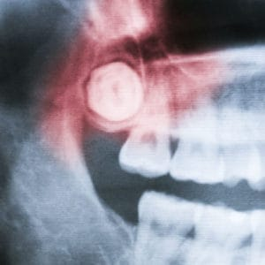 Wisdom Teeth Removal Charlotte NC » Carolinas Center for