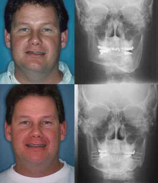 Jaw Surgery Asymmetrical Face Before & After