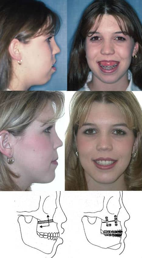 Jaw Surgery Gummy Smile Before After