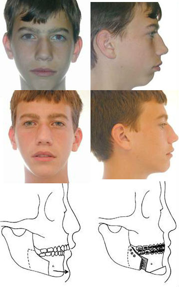 jaw-surgery-overbite-correction-chin-surgery-before-after