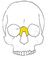 Nasal Orbital Ethmoid Fractures Charlotte Concord Lake Norman