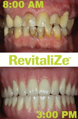 revitalize-teeth-in-a-day