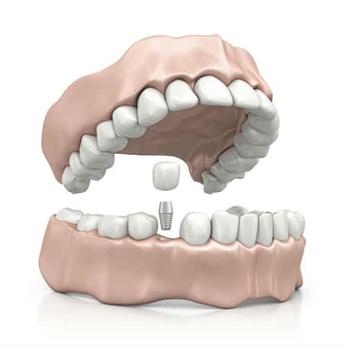 Dental implant costs vary by complexity and damage. Consult an oral surgeon today!