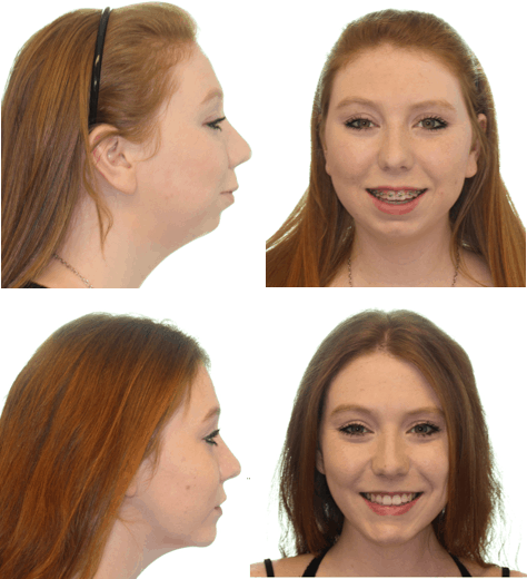 Virtual Oral Surgery Modeling Before & After