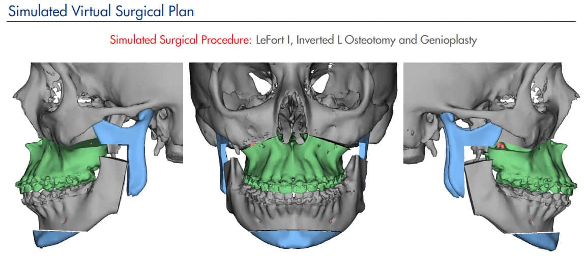 Virtual Oral Surgery Modeling