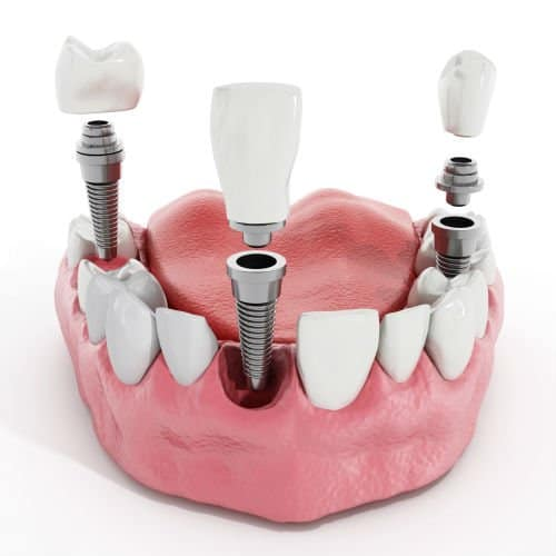 dental-implants-oral-surgeon-charlotte-gastonia-concord-greenville