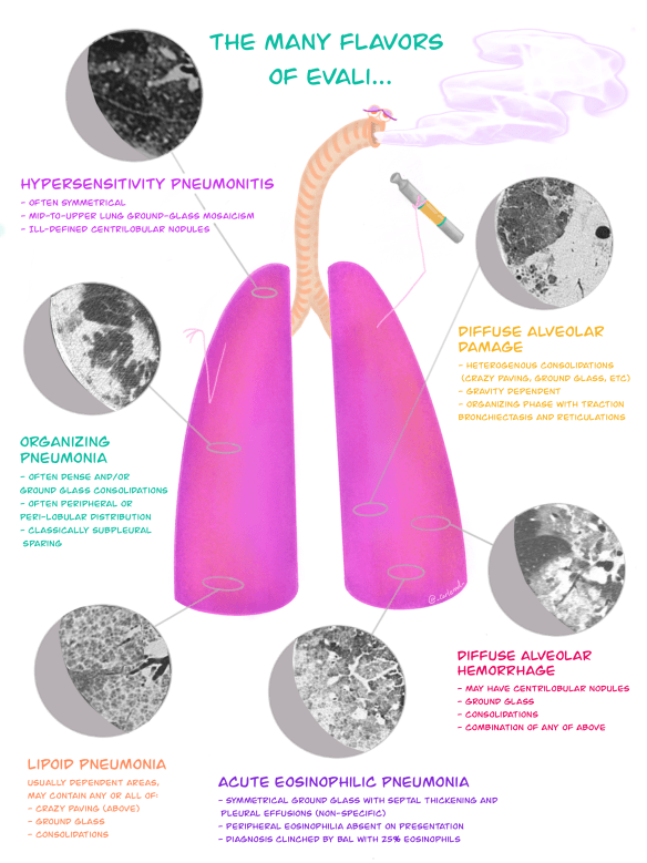 "Illustration: The many radiographic 'flavours' of EVALI; Posted by Jon-Emile S. Kenny MD [@heart_lung] with illustration by Carla M. Canepa MD [@_carlemd_] on Oct. 29, 2019 , ""Vaping Associated Lung Injury-Part 1"""