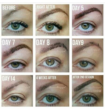 Brow stages