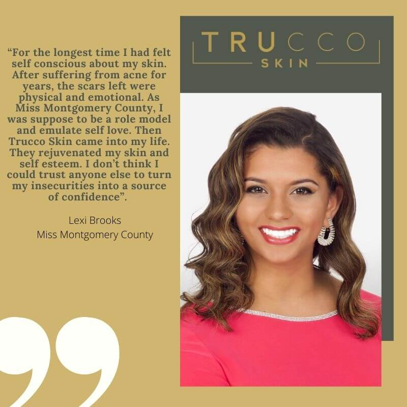 Miss Montco-Media Review of Trucco Skin
