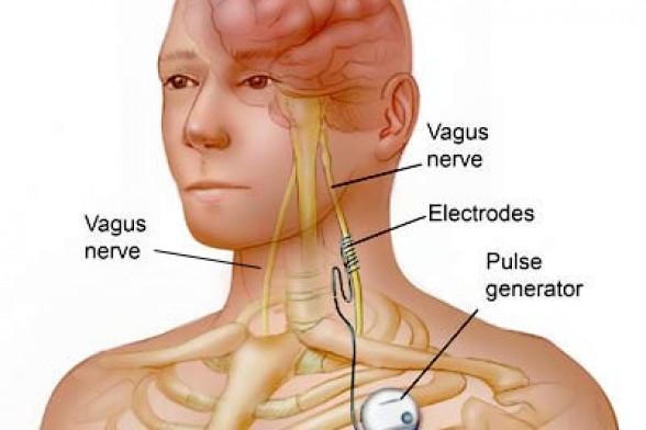 Vagus Nerve Stimulation - New Treatment For Bulimia