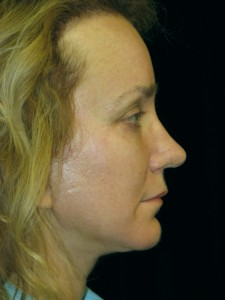After chin implant