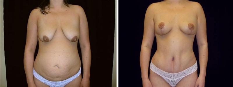 Vertical Breast Lift