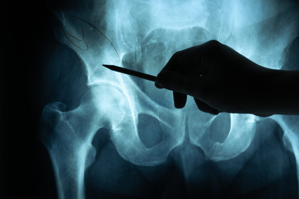 Hip Surgery Recovery