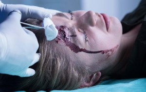 Doctor Cleaning A Wound On Womans Head