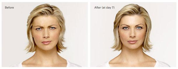 Elgin Reducing Wrinkles, Elgin Botox Injections