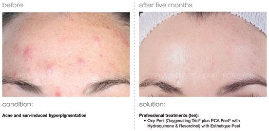 acne-sun-induced-hyperpigmentation