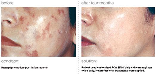 hyperpigmentation-post-inflammatory