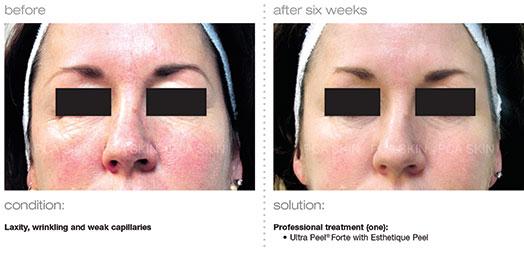 laxity-wrinkling-weak-capillaries