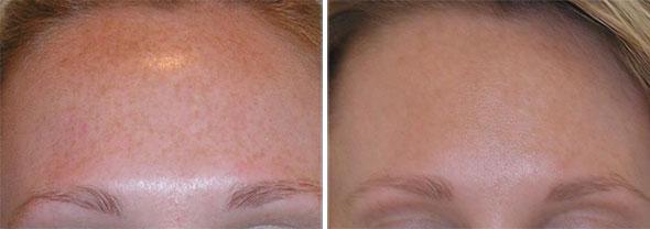 Elgin Laser Body Hair Removal, Elgin Laser Hair Removal Women