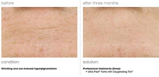 wrinkling-sun-induced-hyperpigmentation