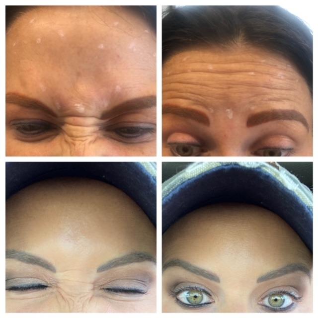 sarah bowmar botox