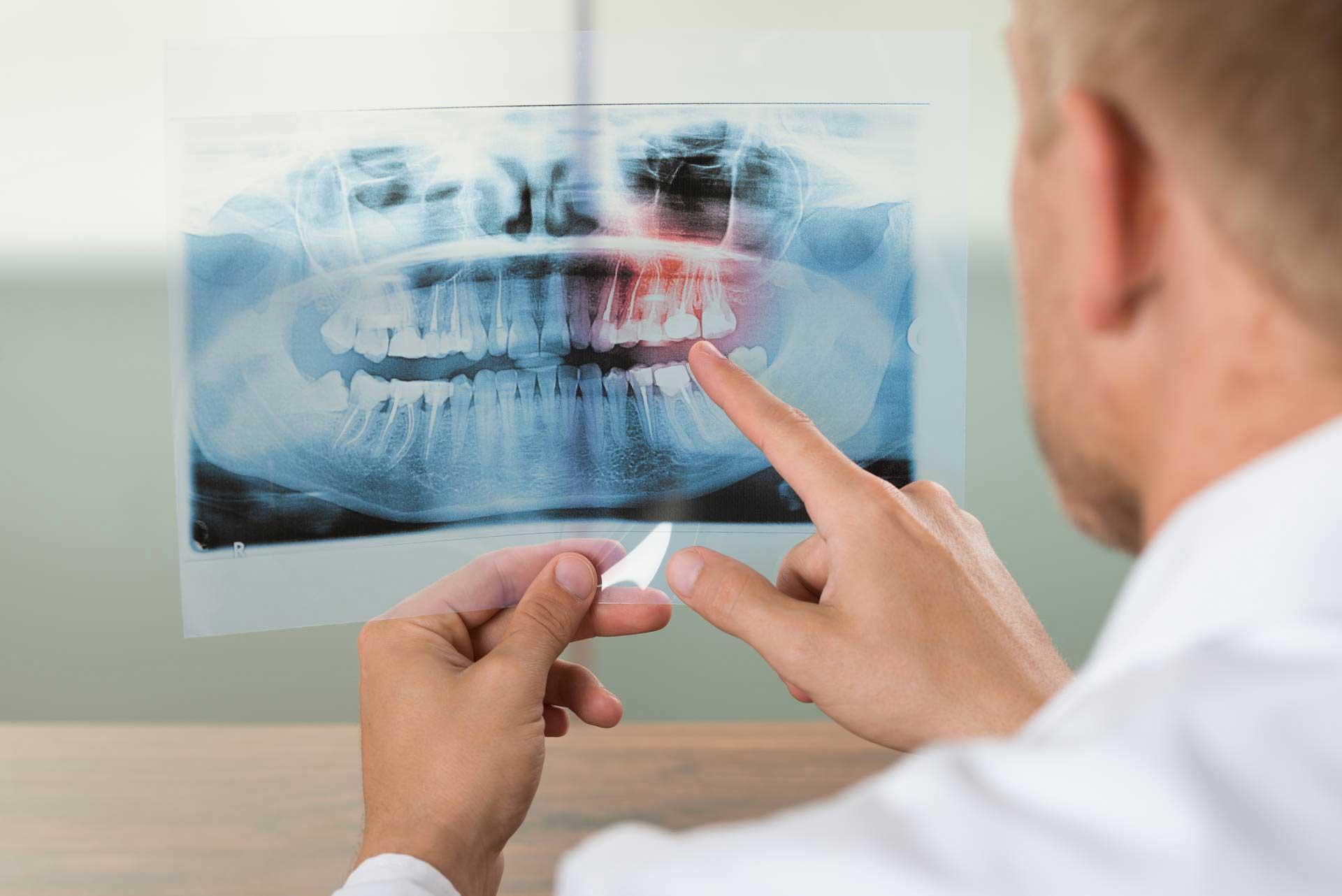 dental-x-ray-exam