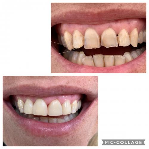 Cosmetic DentistryComposite Veneers
