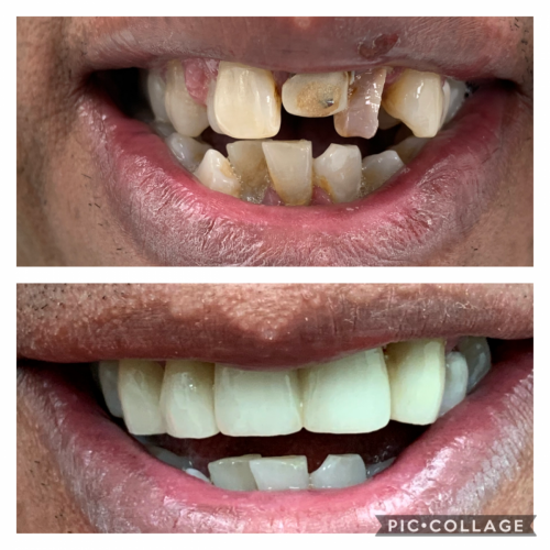 Upper Mouth Reconstruction