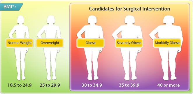 Obesity Bmi Chart At The Weight Loss Surgery Center Of Los Angeles