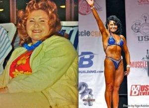 Before & After | Weight Loss Surgery Los Angeles | Dr. David Davtyan