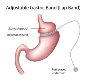 What Is The Difference Between Lap Band Surgery And Gastric Bypass