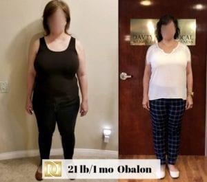 Gastric Balloon | Weight Loss Surgery Los Angeles | Dr. David Davtyan
