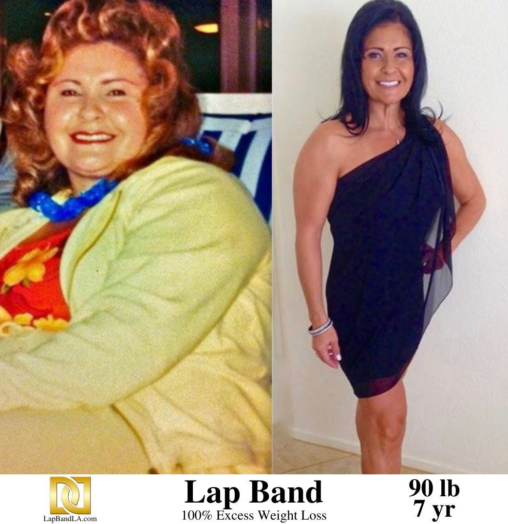 Lap Band Surgery in LA