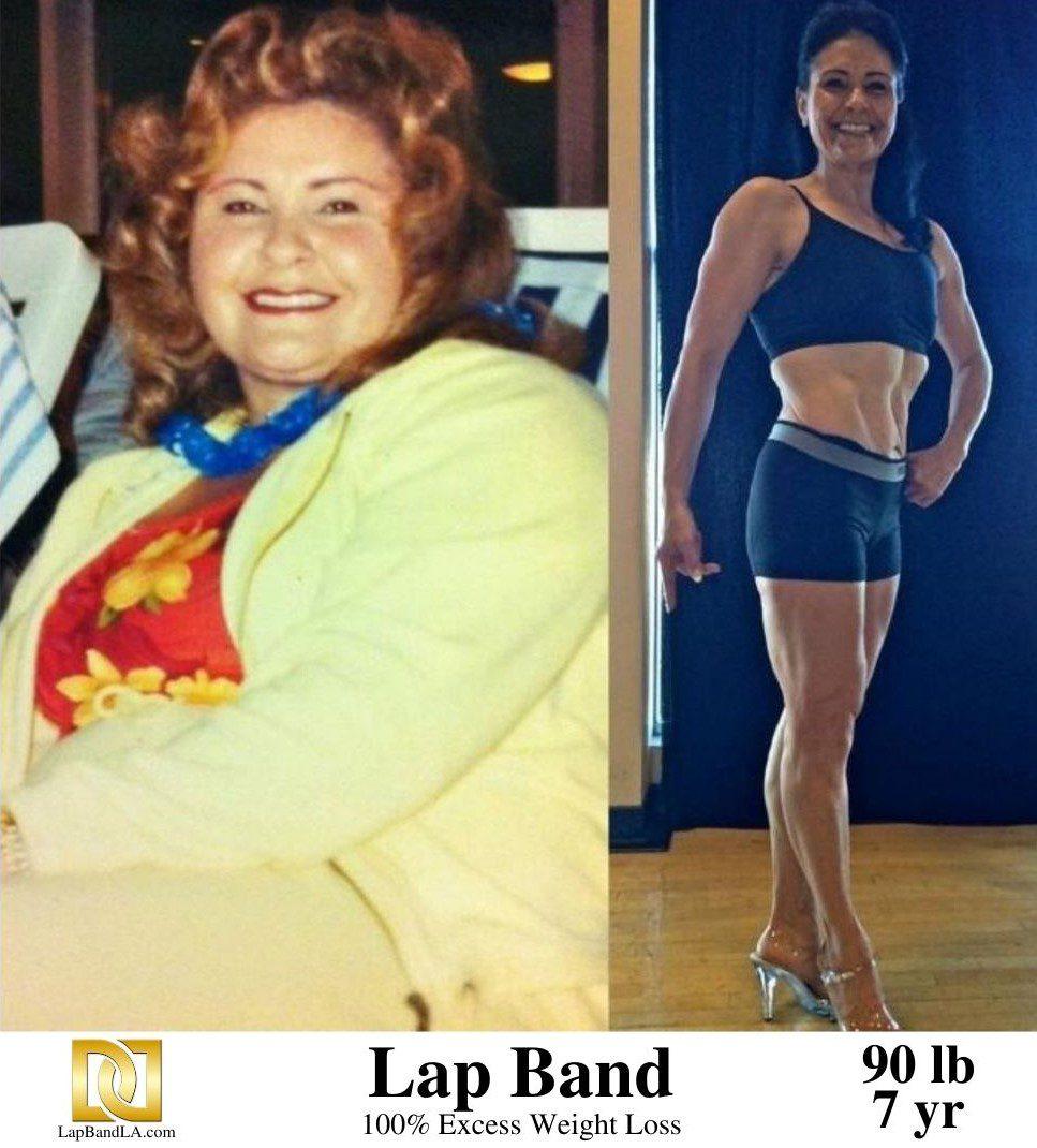 "<h1 class=""hide_09"">Bariatric Surgery <br>Patient Testimonial - Nanor.</h1> | Weight Loss Surgery Los Angeles | Dr. David Davtyan"