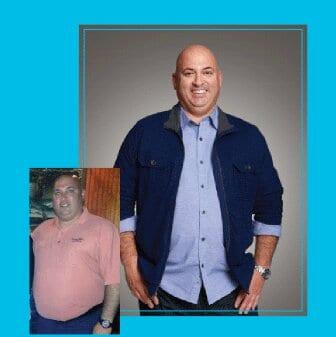 Lap Band Info | Weight Loss Surgery Los Angeles | Dr. David Davtyan