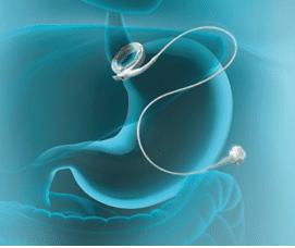 Ventajas De La Banda Gastrica Lap Band   Pages   The Weight Loss Surgery Center Of Los Angeles   Dr. David Davtyan