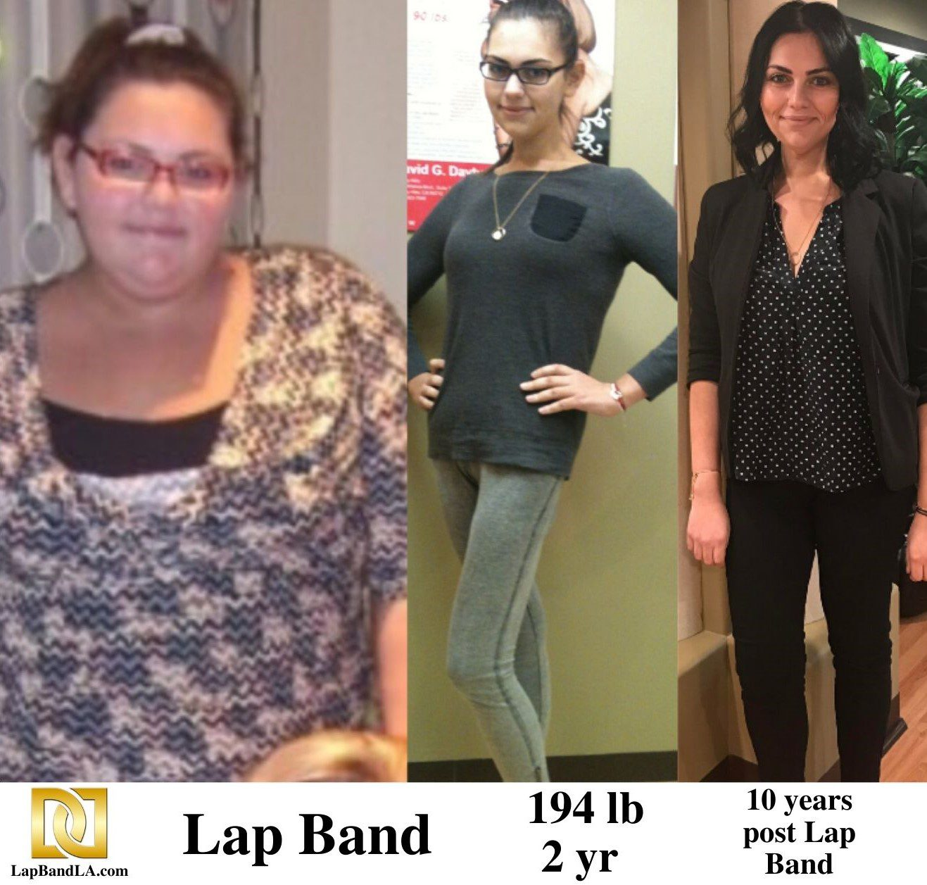 Bariatric Surgery In Los Angeles