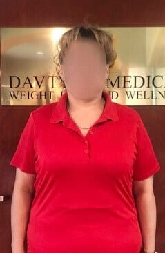 Gastric Sleeve Surgery In Los Angeles