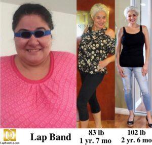 Test Gallery | Weight Loss Surgery Los Angeles | Dr. David Davtyan