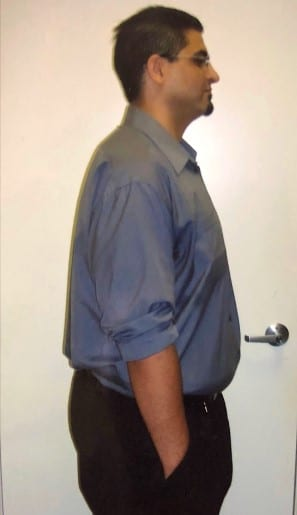"""<h1 class=""""hide_09"""">Bariatric Surgery <br>Before and After - Nick M.</h1> 