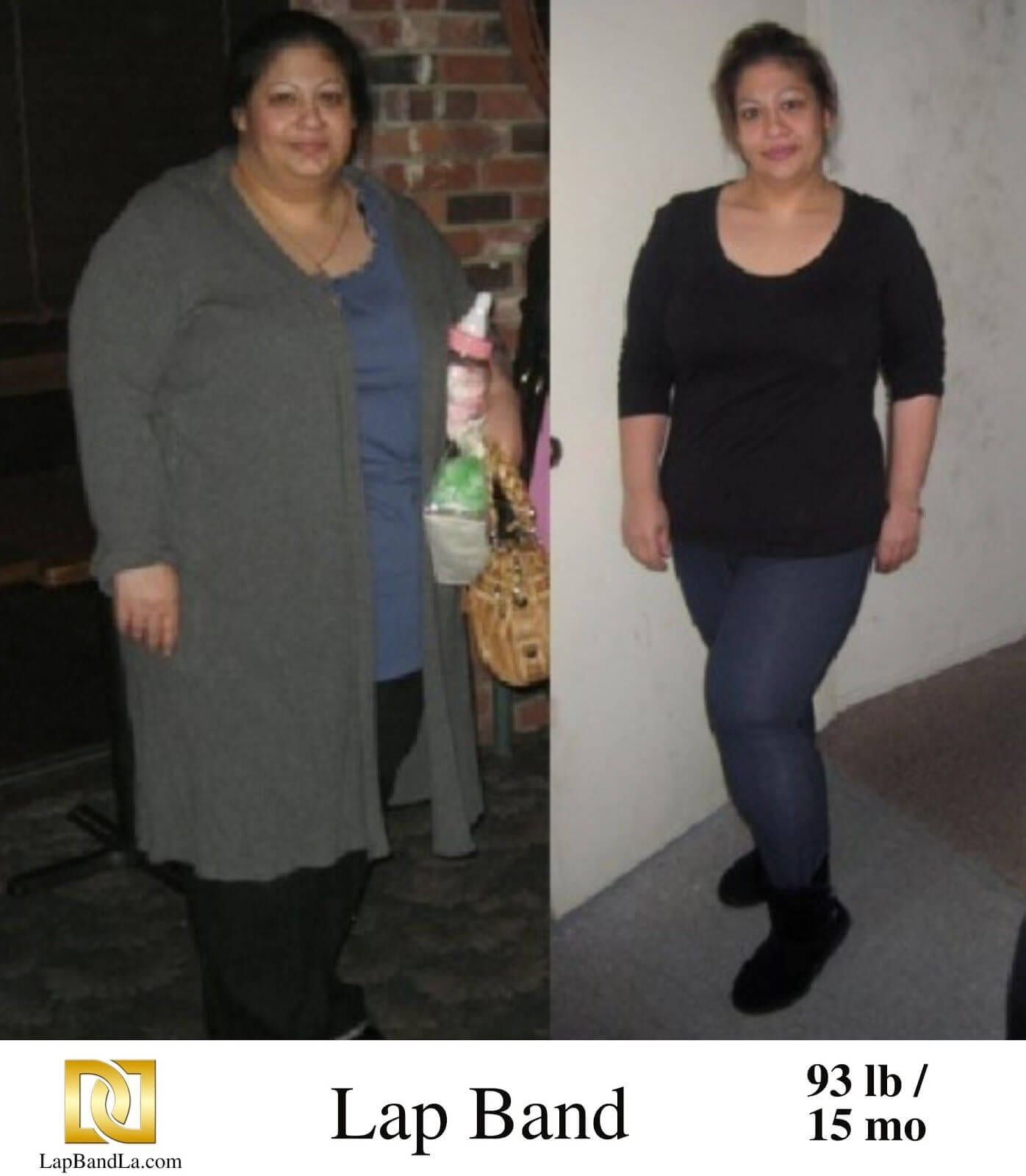 """<h1 class=""""hide_09"""">Bariatric Surgery <br>Before and After - Anita S.</h1> 