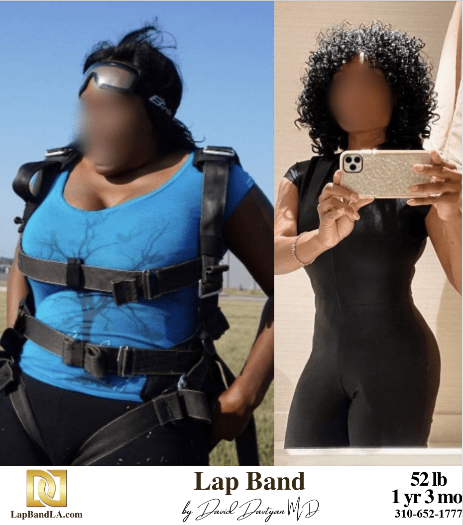 Lap Band Surgery Before And After Bariatric Surgery | The Weight Loss Surgery Center Of Los Angeles
