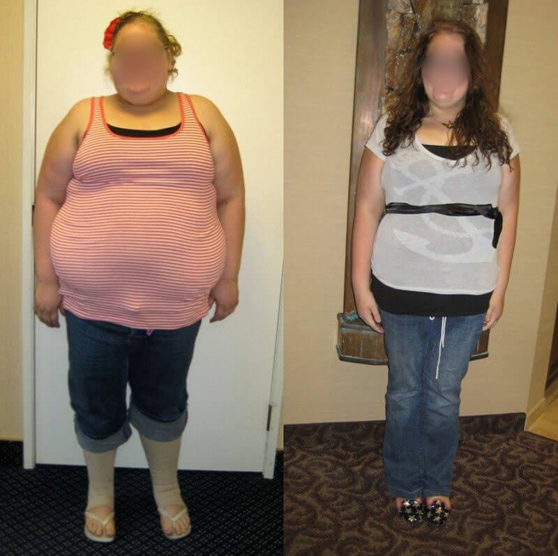"""<h1 class=""""hide_09"""">Bariatric Surgery <br>Before and After - K.K.</h1> 