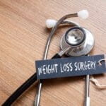 Weight Loss Procedure Options in Glendale, CA