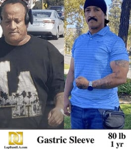 Antonio'S Before And After Gastric Sleeve Surgery Photo 1 Year After Surgery And 80 Pounds Of Weight Loss. Antonio Is Looking Happier, Younger, Healthier And More Physically Fit And Is Flexing His Biceps In Order To Show How Proud Of He Is Of His Weight Loss. Keywords: Gastric Sleeve; Gastric Sleeve Surgery; Sleeve Gastrectomy; Weight Loss; Weight Loss Surgery; Bariatric Surgery; Before And After Photos; Obesity Treatment; How To Lose Weight Fast; Dr. David G. Davtyan; La Manga Gastrica; La Banda Gastrica; Lap-Band