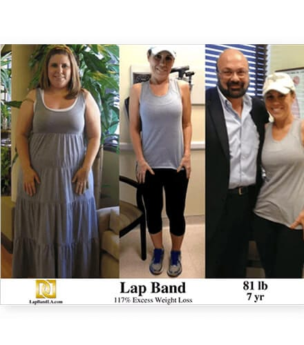 Weight Loss Surgery Before And After In Los Angeles California