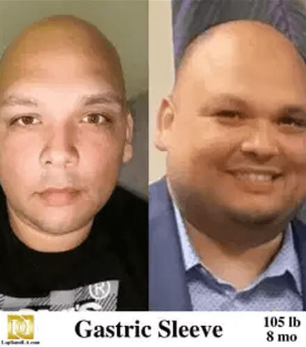 Weight Loss Surgery Los Angeles Before And After Photo