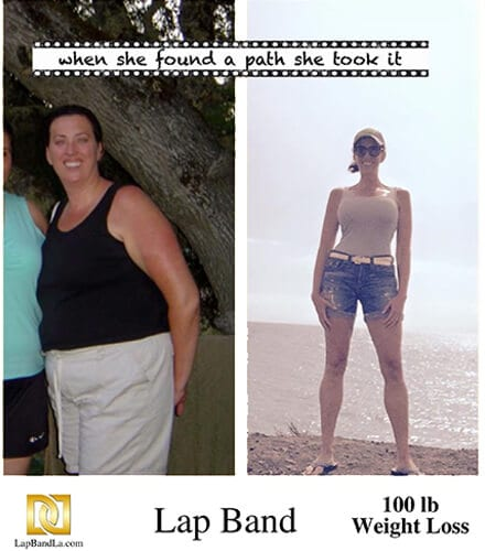 Bariatric Surgery in Los Angeles Before and After